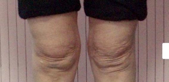 膝の痛い方。