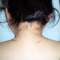 肩・くびのこり、疲れ目の鍼