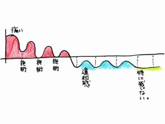 痛みとメンテのグラフ