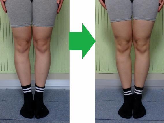 legs-t