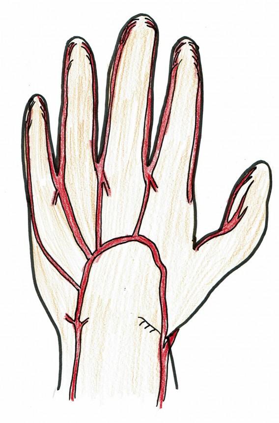 手の平動脈