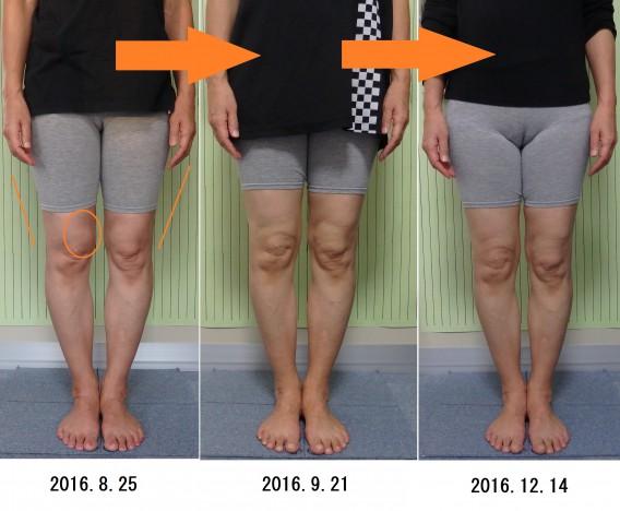 O脚矯正変化の画像3ヶ月