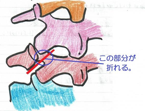 腰椎分離する場所